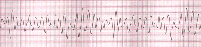 ECG: fibrilación ventricular