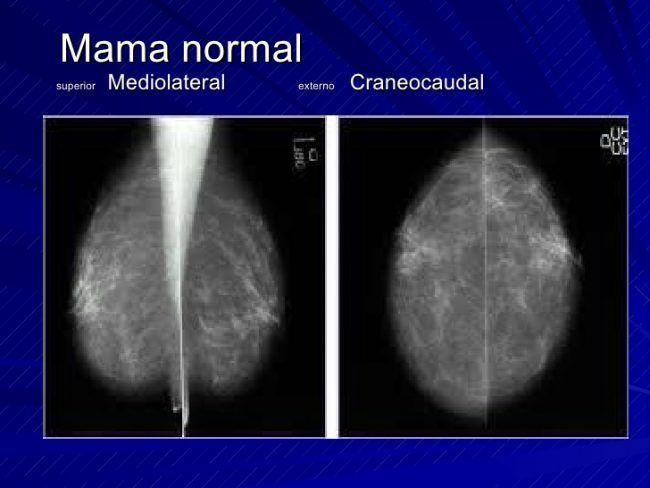 Mamografía sin halllazgos patológicos