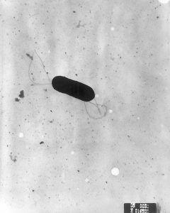 Imagen 1. Listeria monocytogenes, vista al microscopio electrónico.