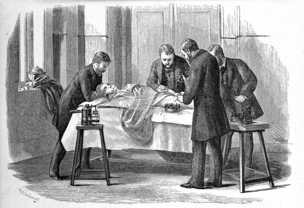 Joseph Lister was a prominent advocate for sterile surgery. Source: sciencemuseum.org.uk