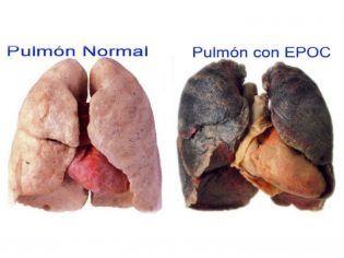 pulmon copia
