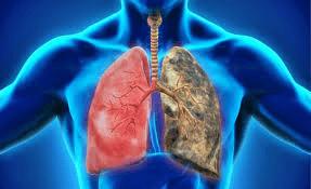 Enfermedad pulmonar obstructiva cronica en el adulto mayor pdf