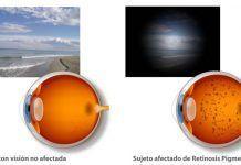 Consecuencias de la Retinosis Pigmentaria en la visión