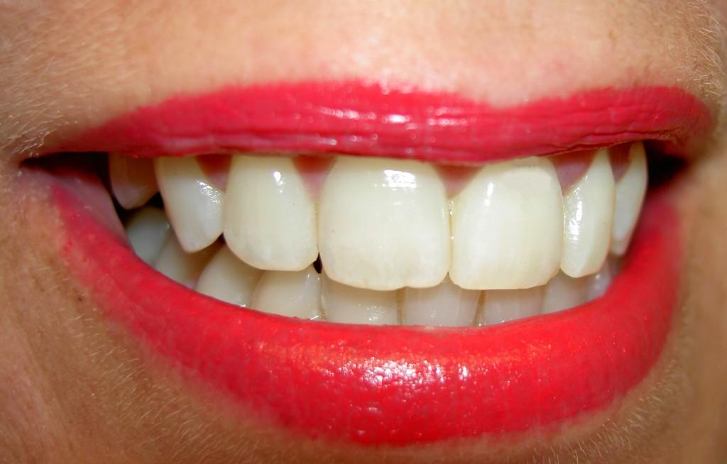 Foto de una sonrisa y dientes blancos