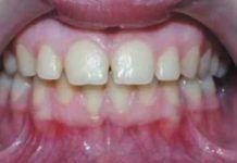 Recesión gingival por piercing labial