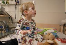 fotografía de un niño al cual se le esta realizando una polisomnografia