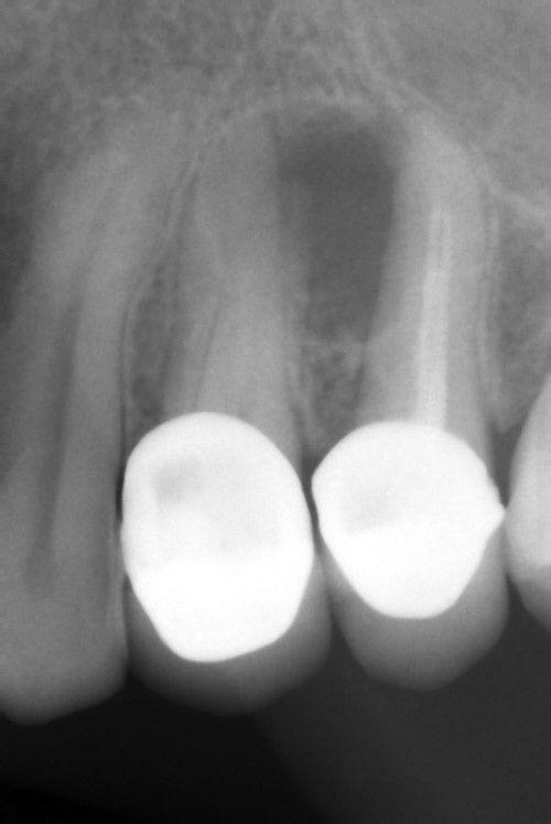 radiografia del caso clinico