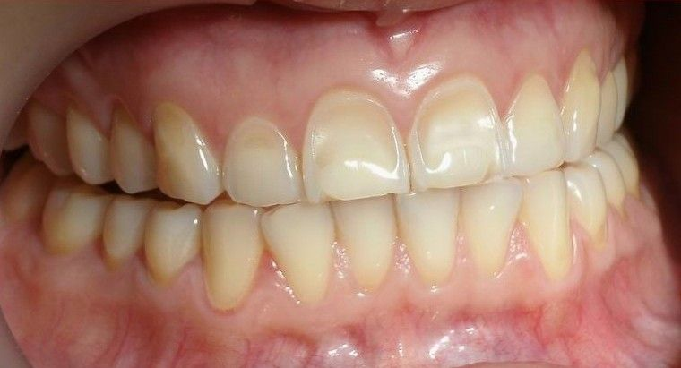 Resultado de imagen de desgaste dental por acido
