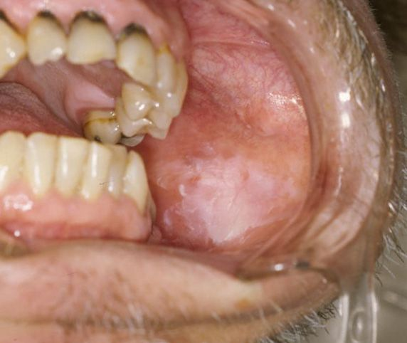 Foto de una leucoplasia oral