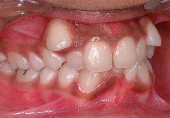 Foto de dientes en maloclusion