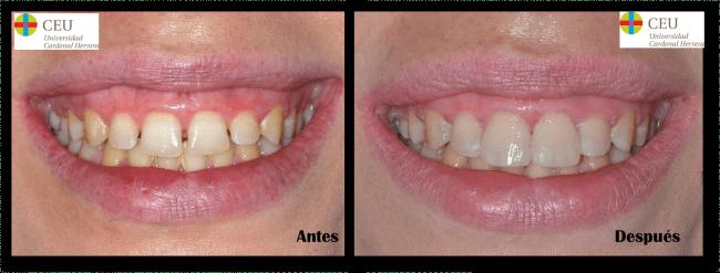Antes y después de un tratamiento estético