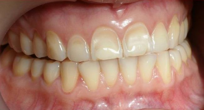erosion-dental-fitoesfingosina