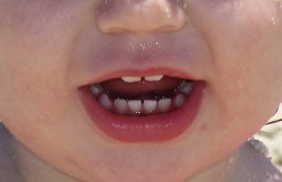 Pediatric oral health is important