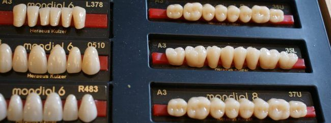 A series of dental prosthetics arranged in a row