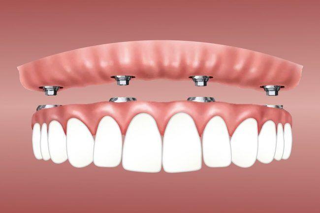 Dibujo de una prótesis fija completa superior confeccionada para sustituir varios dientes perdidos o ausentes