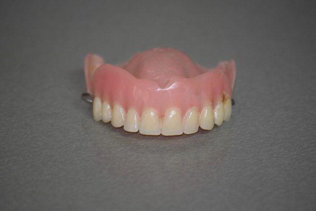 Fotografía de una prótesis removible parcial superior confeccionada en resina para sustituir varios dientes perdidos o ausentes