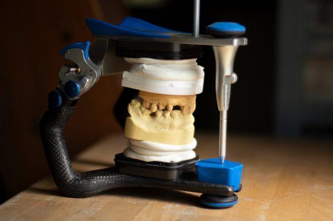 Modelos de escayola montados en un articulador para su estudiar las opciones de tratamiento adecuadas al paciente para restaurar una estética y una función adecuada.