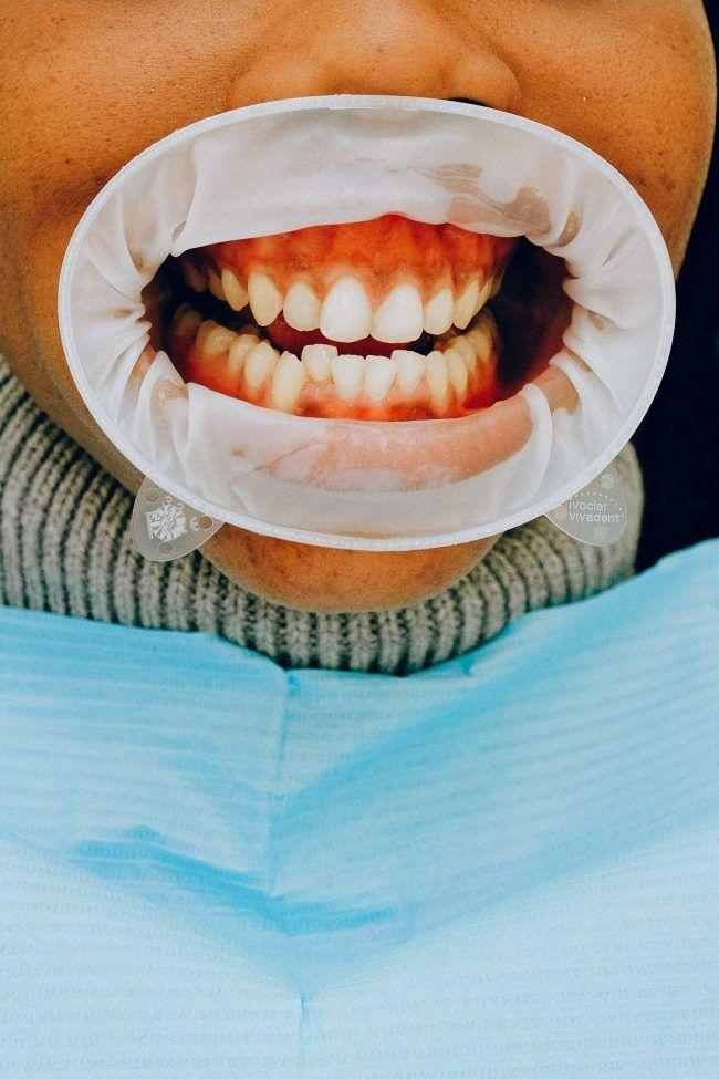 Boca niño con dientes apiñados